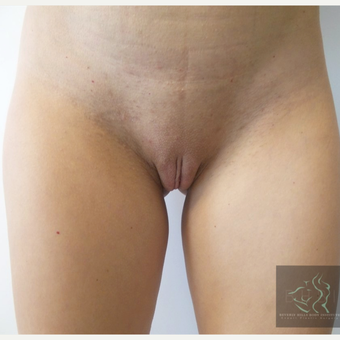35-44 year old woman treated with Labiaplasty after 3507212
