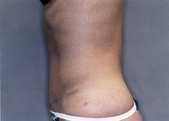 Tummy Tuck after 880851