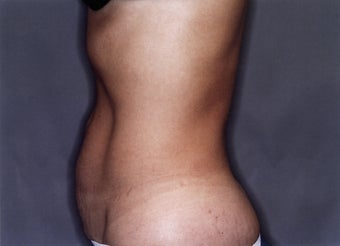 Tummy Tuck before 880851