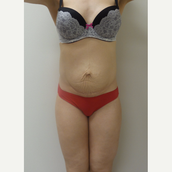 35-44 year old woman treated with Tummy Tuck before 3850215