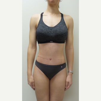 35-44 year old woman treated with Tummy Tuck after 3850215
