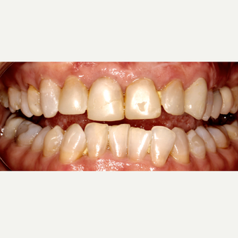 45-54 year old woman treated with Dental Crown before 3544102