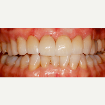 45-54 year old woman treated with Dental Crown after 3544102