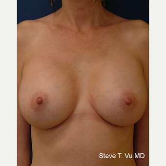 35-44 year old woman treated with Breast Augmentation after 3577174
