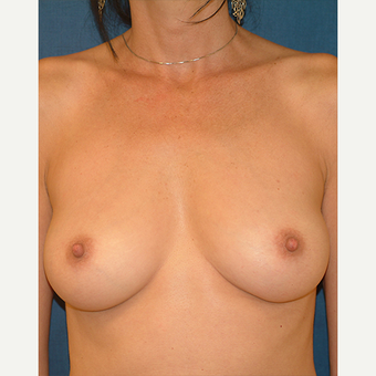 35-44 year old woman treated with Breast Augmentation before 3577174