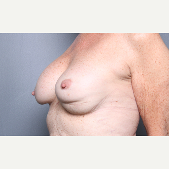 Breast Revision before 3804093