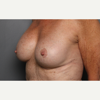 Breast Revision after 3804093