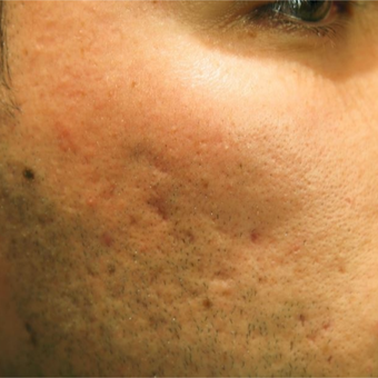 25-34 year old man treated with Acne Scars Treatment before 2750736
