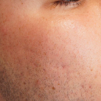 25-34 year old man treated with Acne Scars Treatment after 2750736