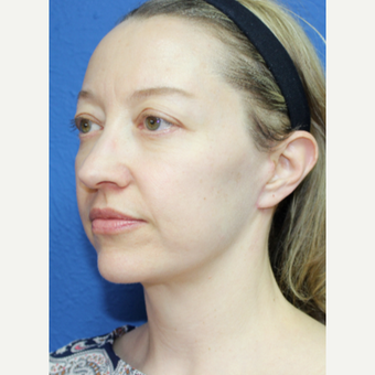 35-44 year old woman treated with Facelift after 3277352