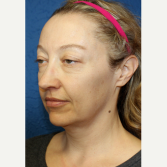35-44 year old woman treated with Facelift before 3277352