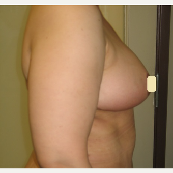 35-44 year old woman treated with Breast Reduction after 2994770