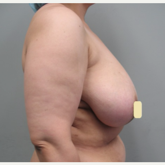 35-44 year old woman treated with Breast Reduction before 2994770