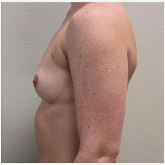 25-34 year old woman treated with Breast Augmentation before 3425221