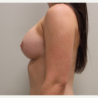 25-34 year old woman treated with Breast Augmentation after 3425221