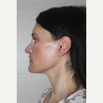 45-54 year old woman treated with Facelift after 3629379