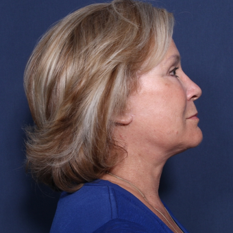65-74 year old woman treated with Neck Lift (view 2 of 2) after 3175314