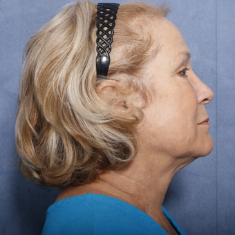 65-74 year old woman treated with Neck Lift (view 2 of 2) before 3175314