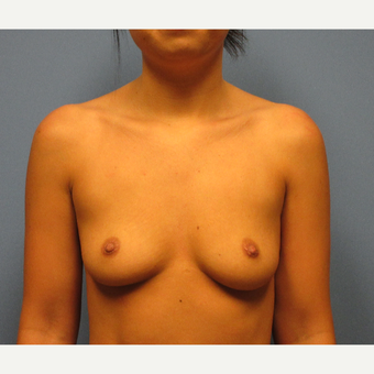 18-24 year old woman treated with Breast Implants before 3636028