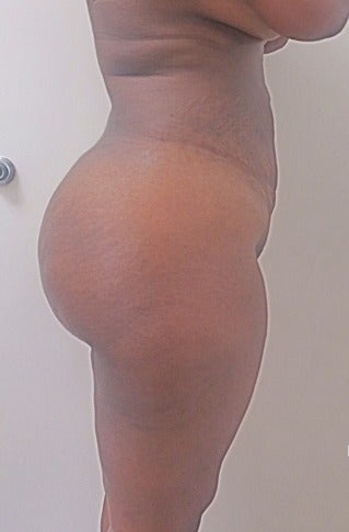 25-34 year old woman treated with Slim Lipo after 3496102
