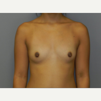 18-24 year old woman treated with Breast Fat Transfer before 3097391