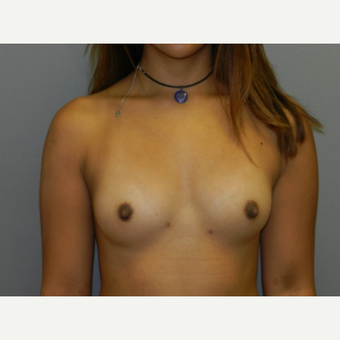 18-24 year old woman treated with Breast Fat Transfer after 3097391