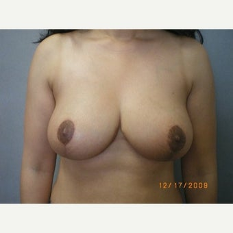 35-44 year old woman treated with Breast Reduction after 1757791