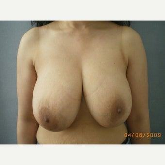 35-44 year old woman treated with Breast Reduction before 1757791
