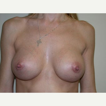 35-44 year old woman treated with Breast Augmentation after 2494313