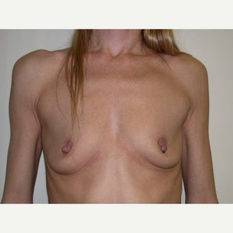 35-44 year old woman treated with Breast Augmentation before 2494313