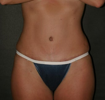 Abdominoplasty Before and After after 70072