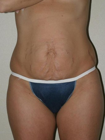 Abdominoplasty Before and After before 70072