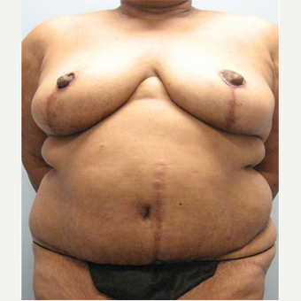 71 year old woman treated with Body Lift after 3680303