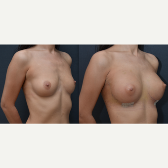 25-34 year old woman treated with Breast Implants before 3238796