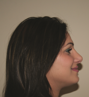 Rhinoplasty after 214349