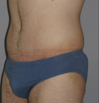 Male Abdominoplasty 586638