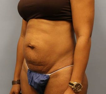 Tummy Tuck with Hernia Repair 1393682