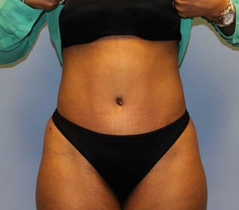 Tummy Tuck with Hernia Repair after 1393682
