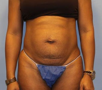 Tummy Tuck with Hernia Repair before 1393682