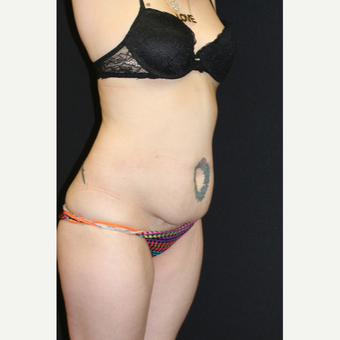 37 year old woman treated with Liposuction before 3076588