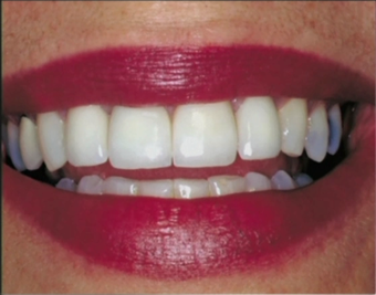 Repaired and replaced old broken dental crowns after 1173285
