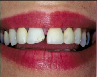 Repaired and replaced old broken dental crowns before 1173285