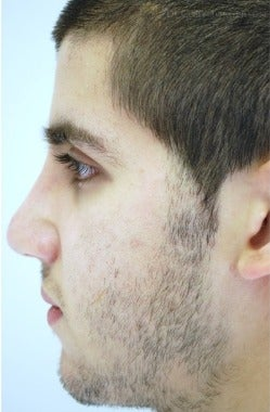 18-24 year old man treated with Rhinoplasty after 3259324