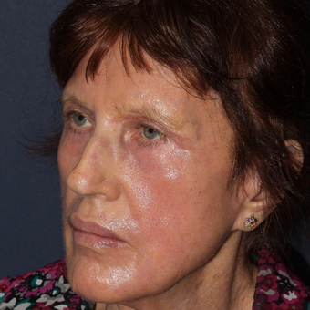 73 year old woman treated with Laser Resurfacing