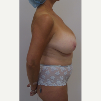 45-54 year old woman treated with Breast Reduction before 3476154