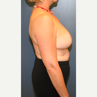 45-54 year old woman treated with Breast Reduction after 3476154