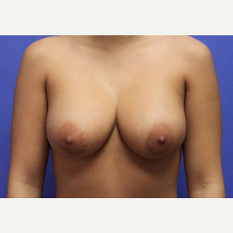 18-24 year old woman treated with Breast Augmentation after 3629245
