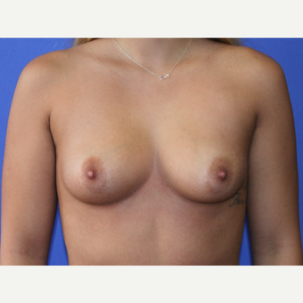 18-24 year old woman treated with Breast Augmentation before 3629245
