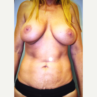 35-44 year old woman treated with Mommy Makeover after 3333439
