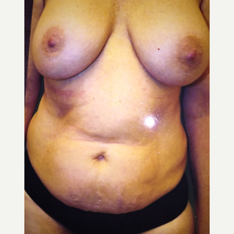 35-44 year old woman treated with Mommy Makeover before 3333439